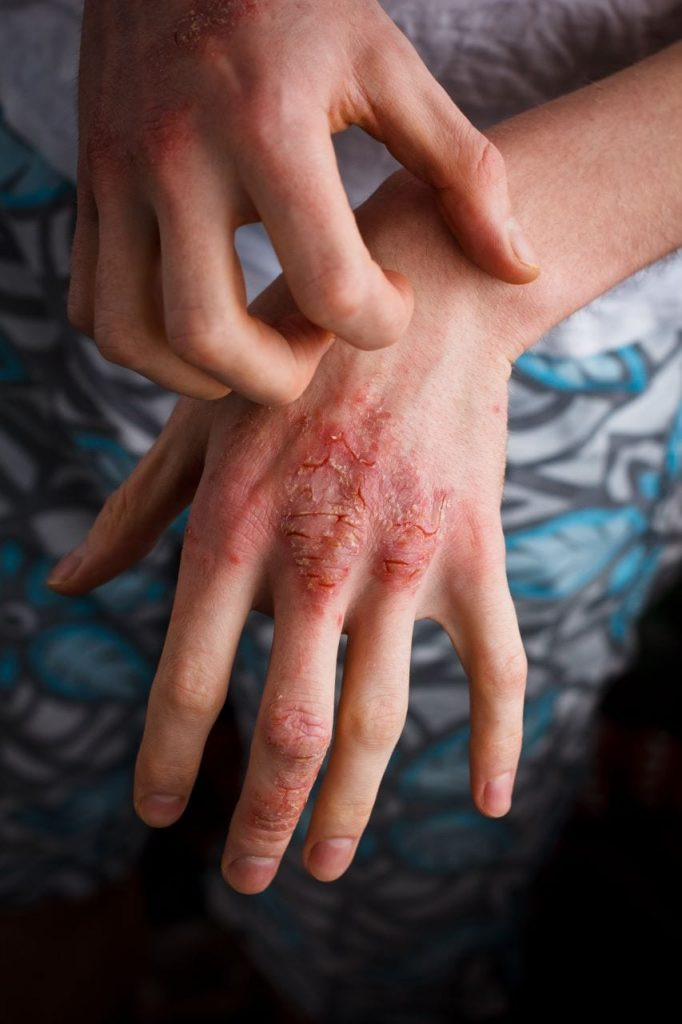 Psoriasis Program - Is it Really effective?