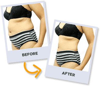 BioRecharge User Before and Results