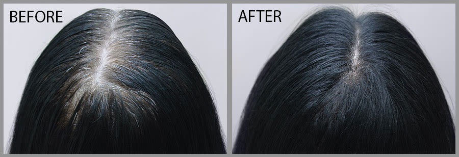 Rescue Hair 911 Before & After Results